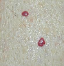 Cherry-angiomas