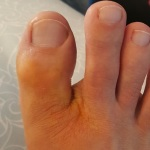 inflamed toe