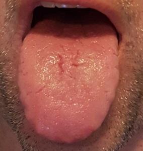 Tongue 2