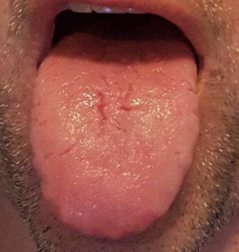 Tongue-2