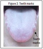 Fig 2 Teeth Marks