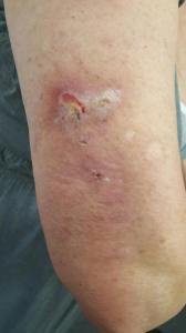 Infection After